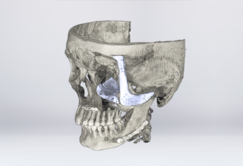 CT image of the zygomatic and orbital bone implant after surgery (Source: CSIR-CS