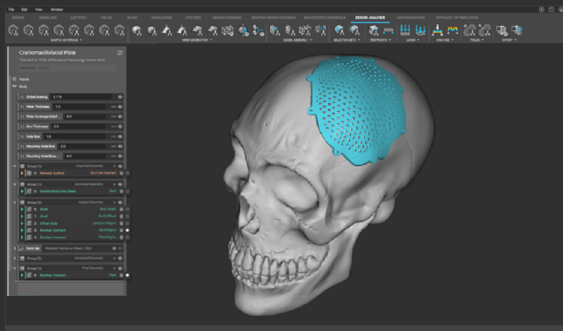 Ntopology: Accelerating Development of patient-specific implants through Design Automation